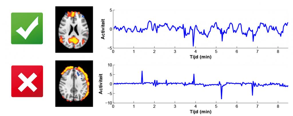 Onderliggende 'bronnen' in rust-fMRI data.
