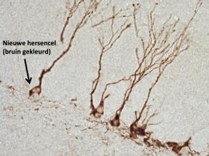 Nieuwe hersencellen in een volwassen rat. De cellen zijn bruin gekleurd en hebben lange uitlopers waarmee ze in contact staan met andere cellen.